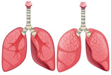 A Set of Human Lung