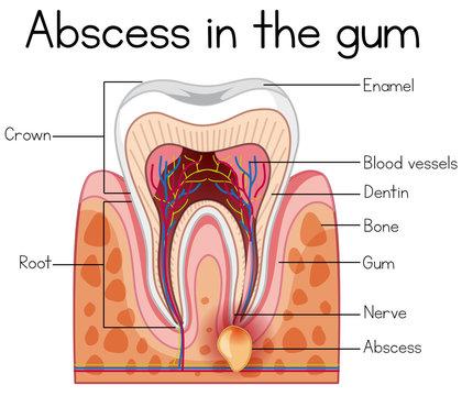 Abscess in the Gum Diagram