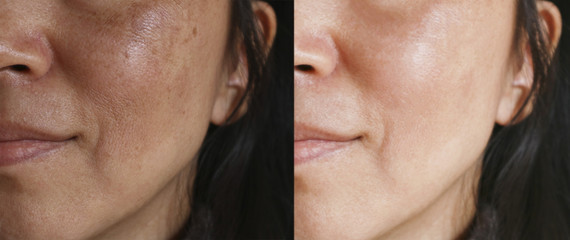 Before and after facial treatment concept. Face with melasma and brown spots and open pores. Wall mural