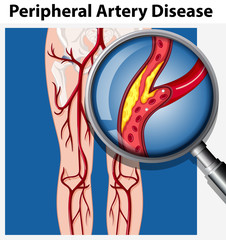 Human with Peripheral Artery Disease