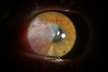 Human eye with cataract. Investigation and test of the eye fund us of the human eye. The pathology of the eye is cataract. large-scale photo