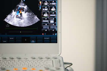The monitor of the modern ultrasonic scanner with the image of blood flows through the heart cavity using the Doppler method.