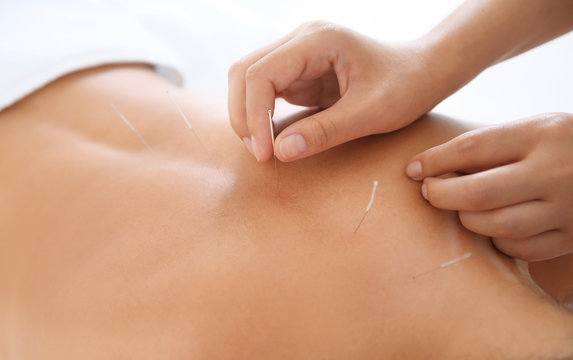 Young woman undergoing acupuncture treatment in salon, closeup