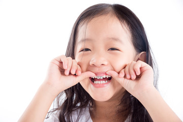 Young Asian girl child showing silver amalgam tooth sealant over white background