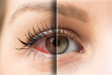 Woman red eye before and after treatment