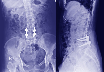 X-ray of the pelvis and spinal column ,side view Post Open Reduction Internal Fixation with internal bone rod, plate and screw by Orthopedic surgeon.