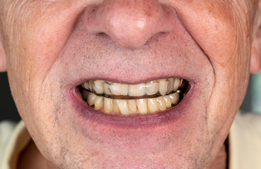Senior man putting a night guard onto crooked teeth