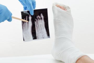 broken leg from the accident, plaster cast splint, orthopedic.