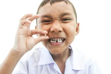 first broken a teeth.