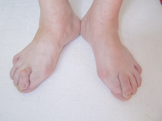 Bare foots which have Hallux Valgus problem.