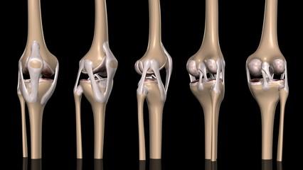 膝関節方位別一覧