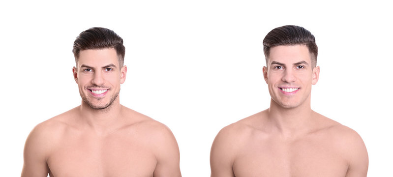 Handsome young man before and after shaving on white background