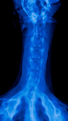 X-ray film of dog anterior view closed up in neck bone pain areas or cervical vertebrae- veterinary medicine and Veterinary anatomy Concept -blue tone color