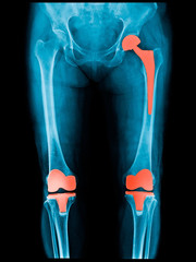 Xray scan of patient who have hip replacement and knee arthroplasty (knee replacement) treatment for Osteoarthritis knee, hip arthritis, Osteonecrosis of Hip. After surgery patient can walk normally