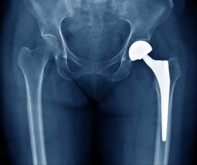 X-ray scan image of hip joints with orthopedic hip joint replacement or total hip prosthesis on left side implant head and screws in human skeleton in blue gray tones.