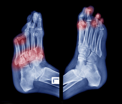X-ray image of diabetic feet, oblique view show amputation toes and joint inflamed