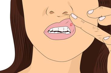 Mouth Ulce