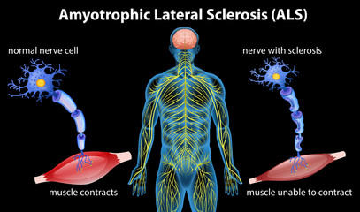 Anatomy of amyotrophic lateral sclerosis