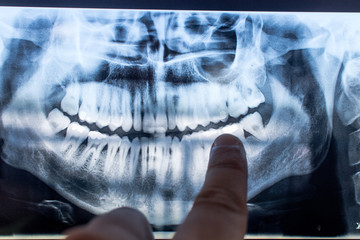 X-ray of a mouth with all visible teeth and cavity in evidence. Orthopanoramic radiographt at the dentist with caries and fillings showned by the doctor. teeth image.