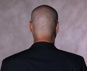 studio portrait of a bald man on a black background