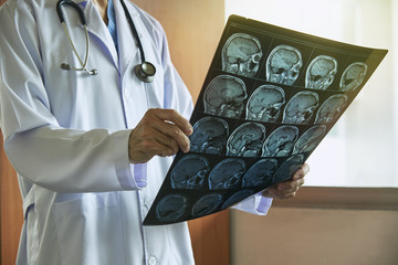 Doctor holding MRI brain in medical office