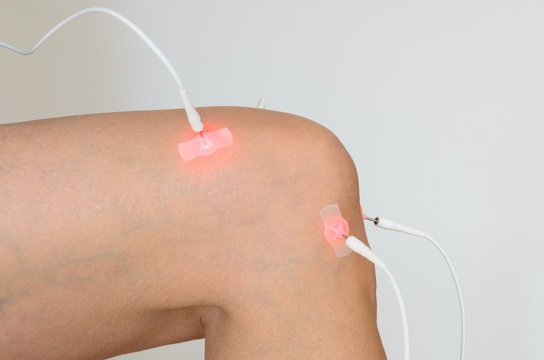 Patient having electrode therapy on a knee joint