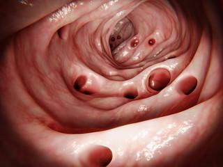 Massive diverticulosis in human intestine