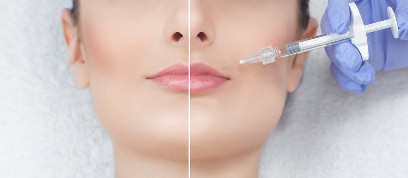 The cosmetologist makes injections of botulinum toxin in the lips of the patient. Close-up photo before and after procedure