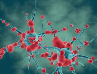 Neurodegenerative disease, neuropathy and brain tumor 3d concept.