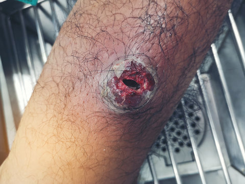 Infected wound at leg.