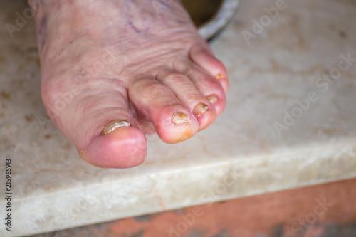 foot finger whitlow