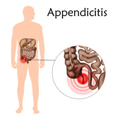 Inflammation of the appendix, appendicitis. Anatomy vector realistic illustration. White background.