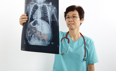 Doctors examining x-ray of chest