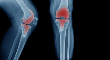X-ray image, total knee artroplasty in blue tone