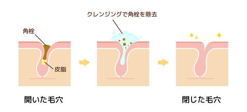 毛穴断面図イラスト / 角栓・皮脂汚れの詰まった毛穴をクレンジングできれいにする様子