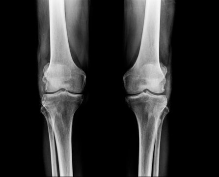 knee x-ray,OA knee in old man