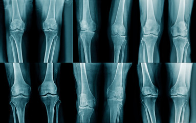 collection x-ray OA knee