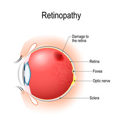 Retinopathy. Vertical section of the eye and eyelids with damage to the retina.