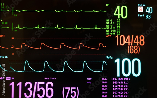 Medical Monitor Showing Slow Heart Rate or Bradycardia