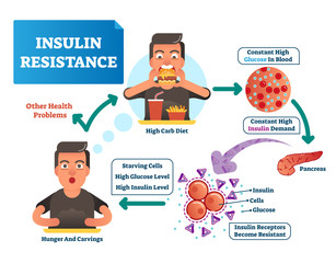 Insulin resistance vector illustration. Labeled scheme with all cycle of process. High glucose in blood, constant demand, pancreas, reporters become resistant and hunger.