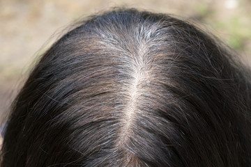 Young woman shows her gray hair roots, close up