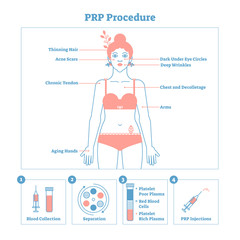 PRP Procedure vector illustration graphic diagram, cosmetology procedure scheme. Women beauty and skincare. Line style clean design poster with labels.