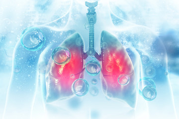 Obraz Virus and bacteria infected the Human lungs. lung disease - fototapety do salonu