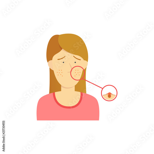 Brown Hair Girl Woman With Acne Diagram Detail On Face Illustration