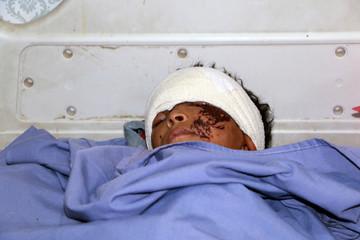 Boy injured in Thursday's air strike lies on a hospital bed in Saada, Yemen