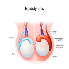 Epididymitis is inflammation of the epididymis of the testicle.