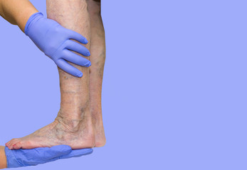 Lower limb vascular examination because suspect of venous insufficiency. The female legs on blue background. Varicose veins concept
