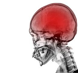 black skull x-ray on dark blackground