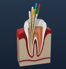 Gutta percha endodontics instrument, dental anatomy. 3D illustration