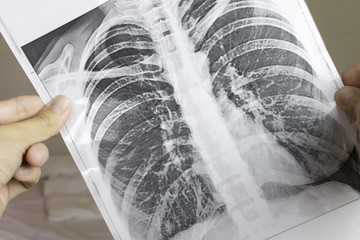 Cropped hands holding fluorography, x-ray. Lung desease concept.